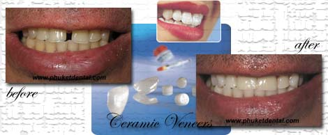 Ceramic/Porcelain Veneers by Phuket Dentist at Phuket Dental Clinic in Phuket,Thailand