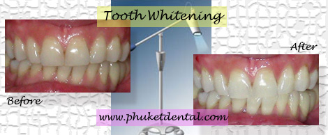 Tooth Whitening:Coldlight,non-LASER,LED,Natural Plus at Phuket Dental Clinic,Thailand