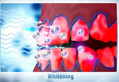 Natural Plus Tooth Whitening at Phuket Dental Clinic,Thailand