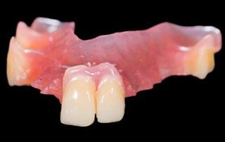 City park dental clinicremovable partial denturestemporary plate completepartial dentures solutioingenieria Images